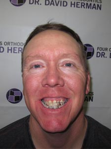 farmington orthodontist